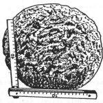 Kugelfund aus 1980